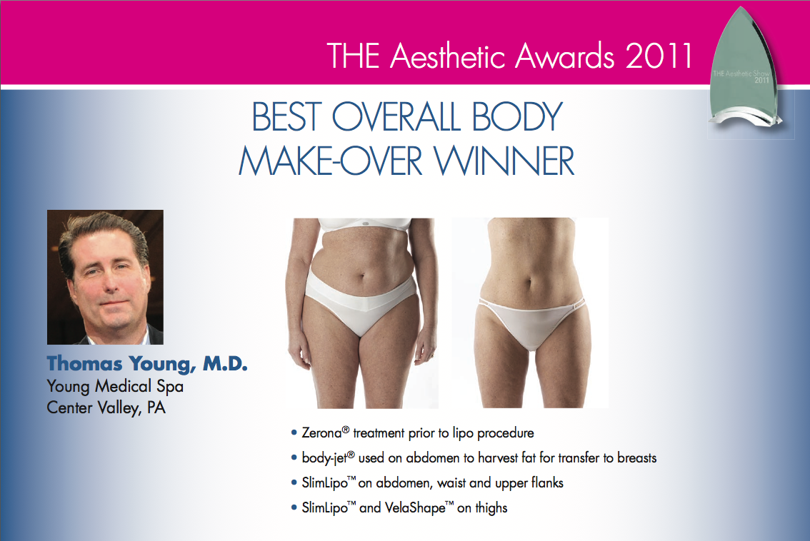 BEST OVERALL BODY MAKEOVER – 2011​