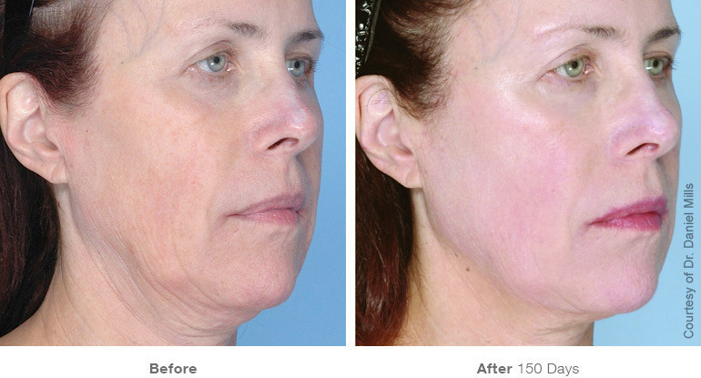 Before and After Ultherapy Result After 150 days