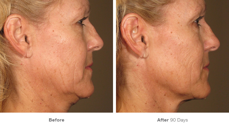 Before and After Ultherapy Result After 90 Days