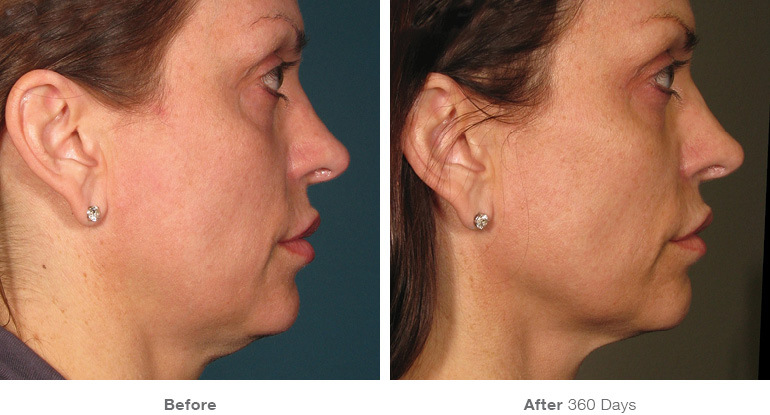 Before and After Ultherapy Result After 360 Days