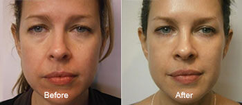 chemical peel before after thomas young md pennsylvania