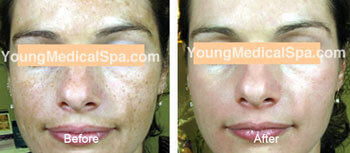 chemical peel before after thomas young md pennsylvania thumb