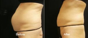 Coolsculpting Before and After 1