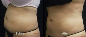 Coolsculpting Before and After 4