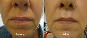 Dermal Fillers Nose and Mouth Before and After