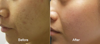 microneedling micropen before after thomas young md pennsylvania