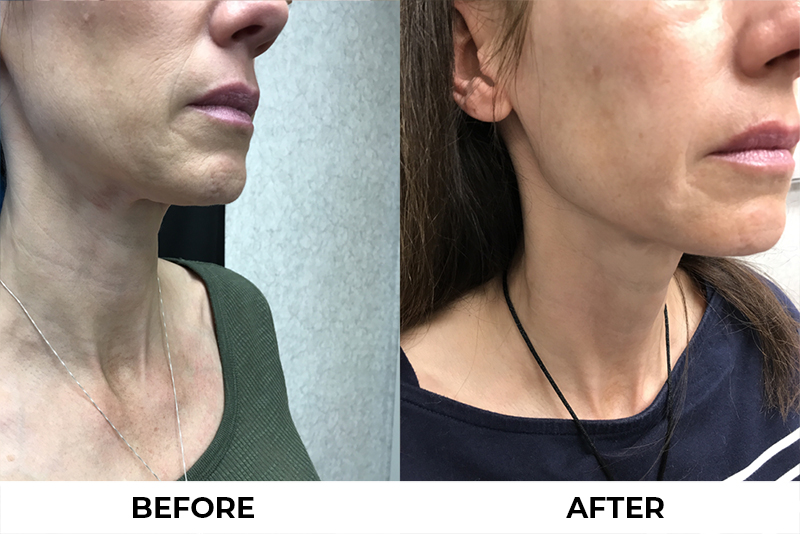 Young Medical Spa Before and After Photos Ultherapy treatment