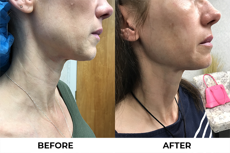 Youthful appearance of skin Before and After Ultherapy treatment in Center Valley Pennsylvania