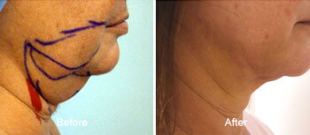 Smartlipo laser Liposuction Before and After Side View Face