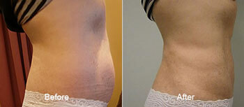 Smartlipo laser Liposuction Before and After Side View 3