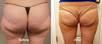 Smartlipo laser Liposuction Before and After Back View 2