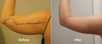 Smartlipo laser Liposuction Before and After Arms