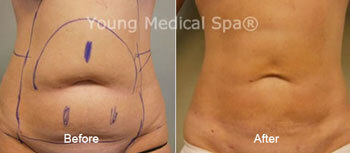 Smartlipo laser Liposuction Before and After Front View 2