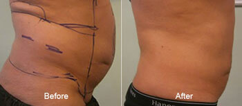 Smartlipo laser Liposuction Before and After Side View 5