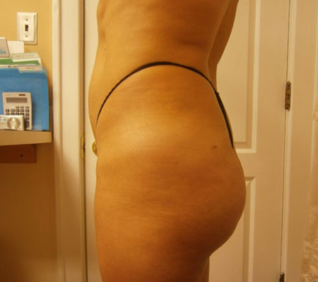 young-medical-spa-after-brazilian-butt-lift-lansdale-center-valley-pa-1