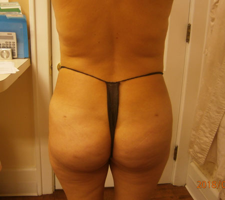 young-medical-spa-after-brazilian-butt-lift-lansdale-center-valley-pa-2