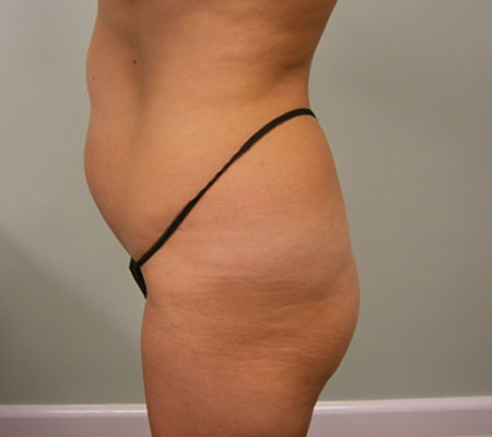 young-medical-spa-before-brazilian-butt-lift-lansdale-center-valley-pa-1