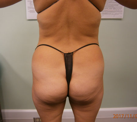 young-medical-spa-before-brazilian-butt-lift-lansdale-center-valley-pa-2