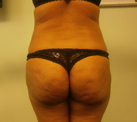 young-medical-spa-brazilian-butt-lift-after-philadelphia-lansdale-pa-2-1