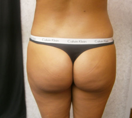 young-medical-spa-brazilian-butt-lift-after-philadelphia-lansdale-pa-3