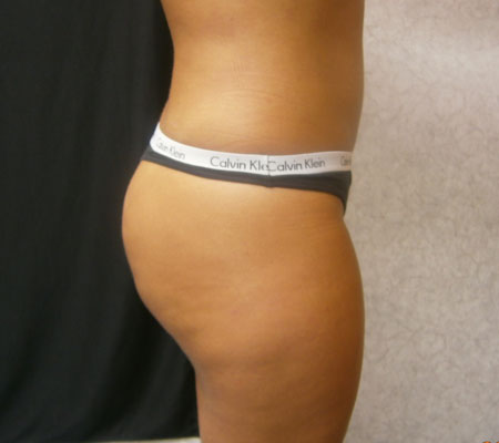 young-medical-spa-brazilian-butt-lift-after-philadelphia-lansdale-pa-4