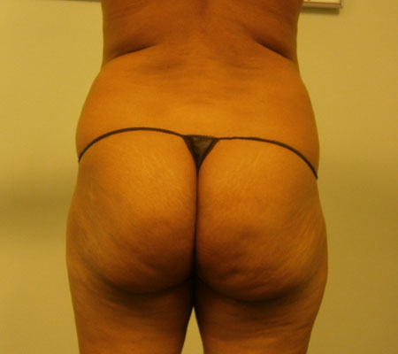 young-medical-spa-brazilian-butt-lift-before-philadelphia-lansdale-pa-2