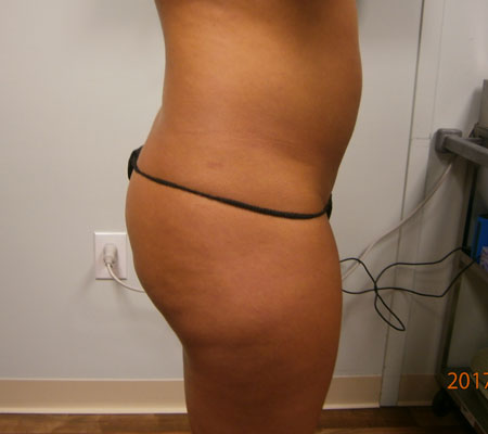 young-medical-spa-brazilian-butt-lift-before-philadelphia-lansdale-pa-4