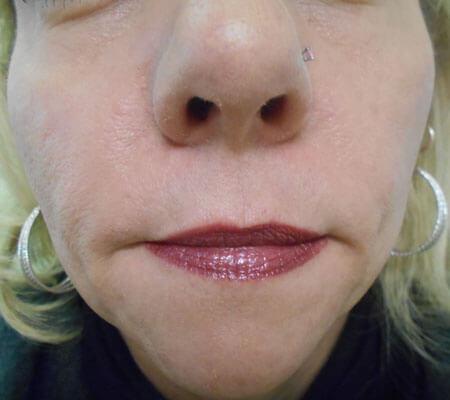 young-medical-spa-dermal-filler-after-philadelphia-lansdale-pa-3