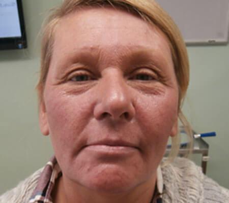 young-medical-spa-dermal-filler-before-philadelphia-lansdale-pa-2