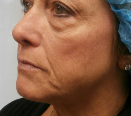 young-medical-spa-dermal-filler-side-before-center-valley-pa-1