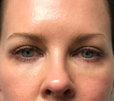 Eyelid Lift After Front