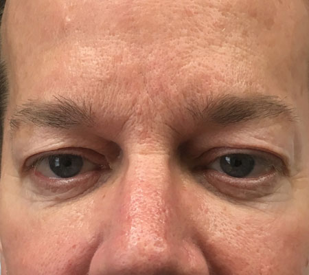 young-medical-spa-eyelid-lift-before-lansdale-center-valley-pa-1