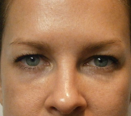 Eyelid Lift Before Front