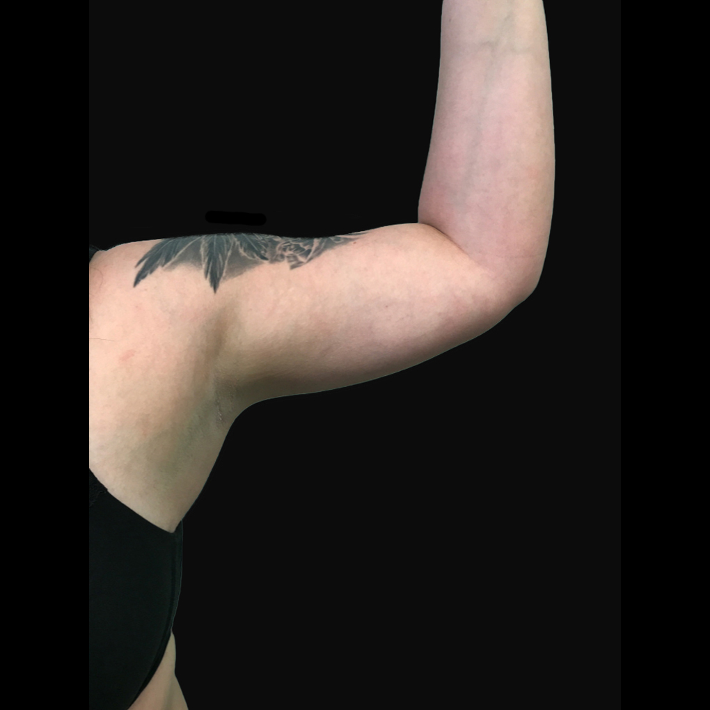 Bodytite Left Arm After