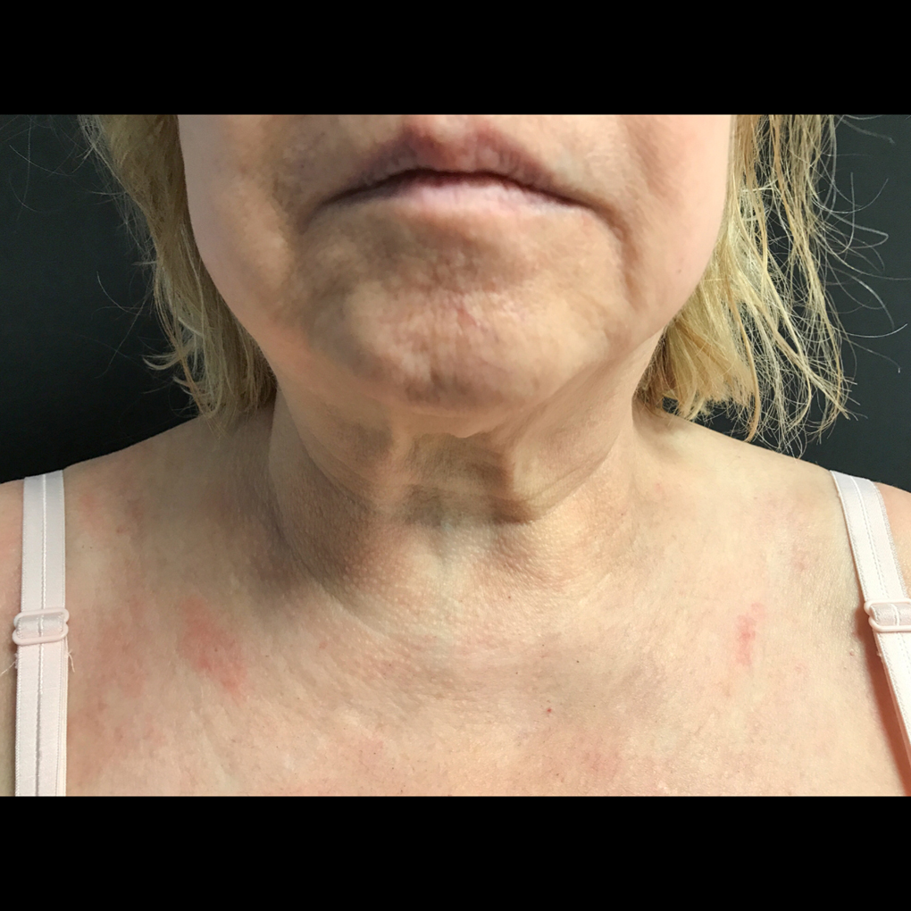 Coolsculpting Chin Front View After