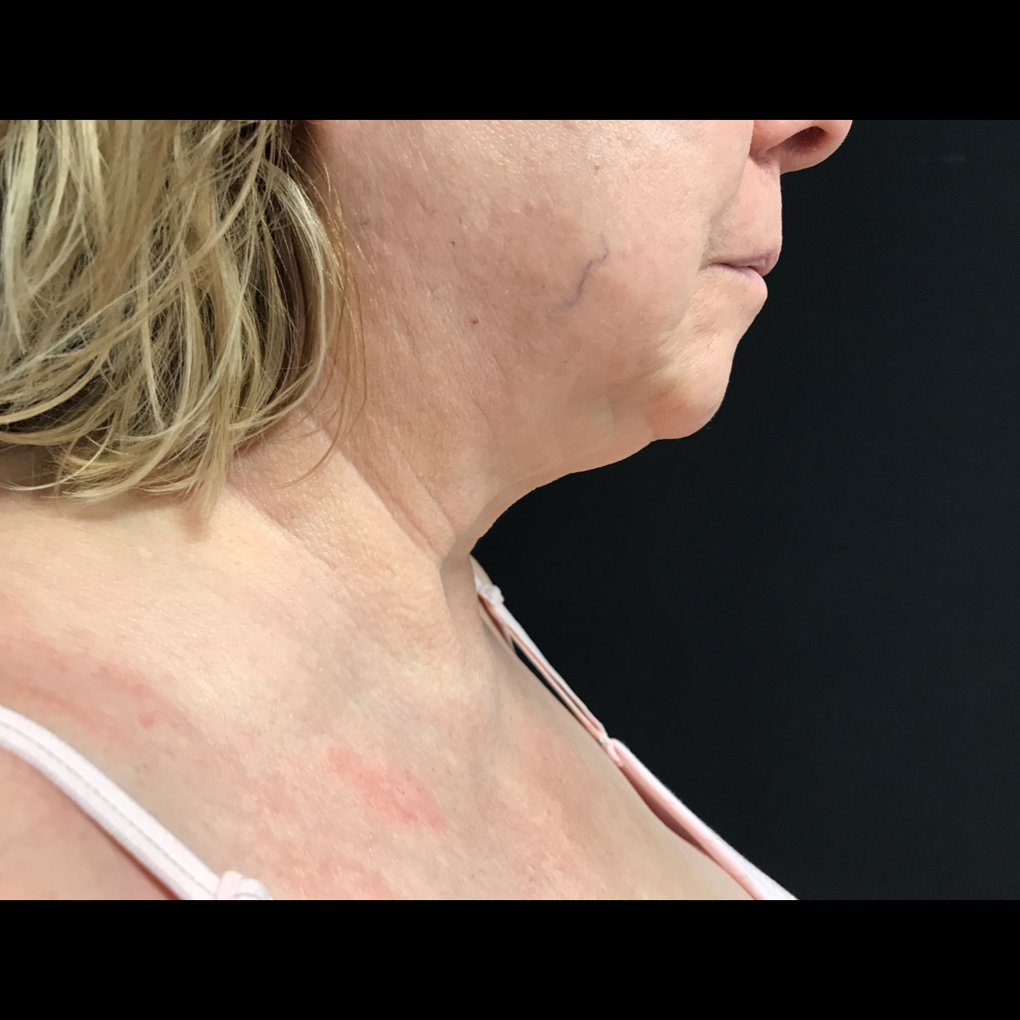 Coolsculpting Chin Side View After