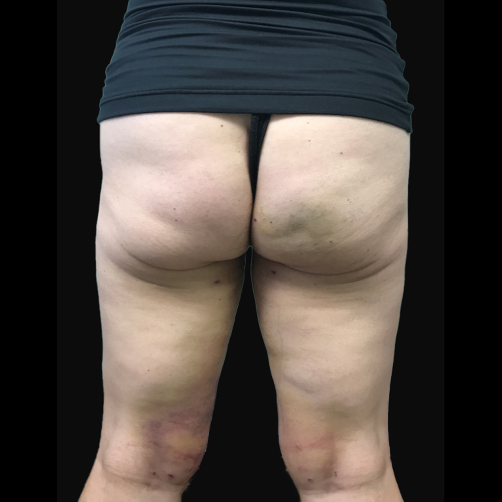 After Smartlipo Inner Thighs and Knee Back View