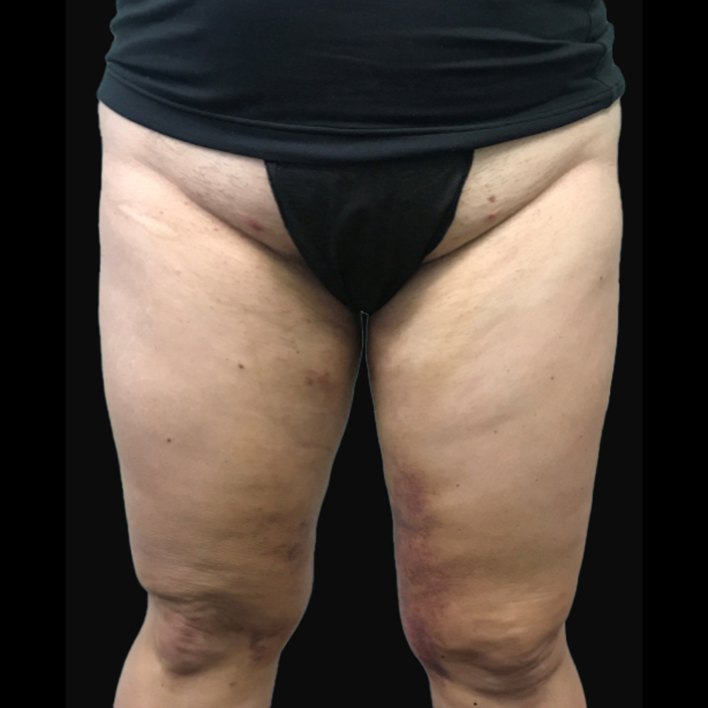 After Smartlipo Inner Thighs and Knee Front View