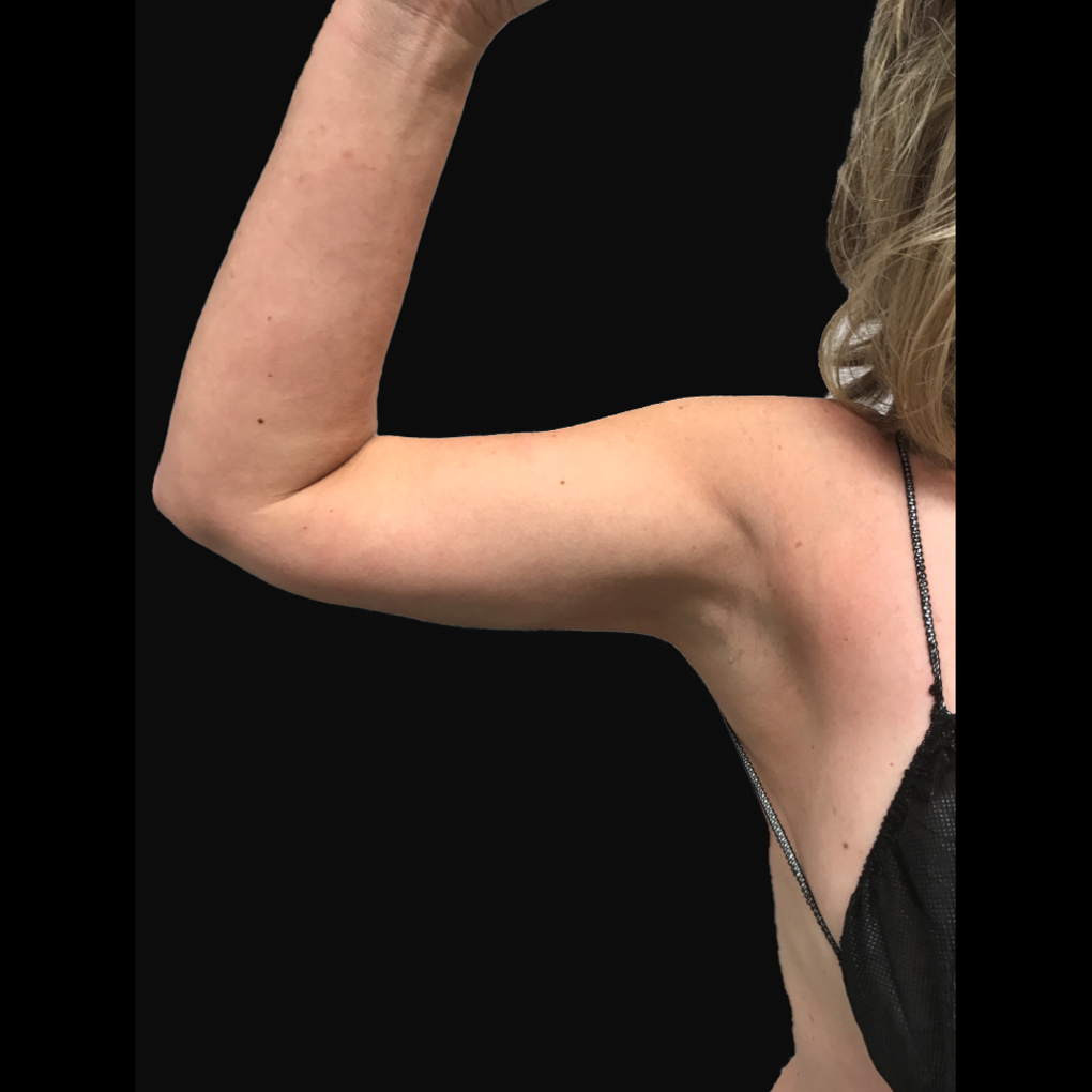 After Smartlipo Right Arm
