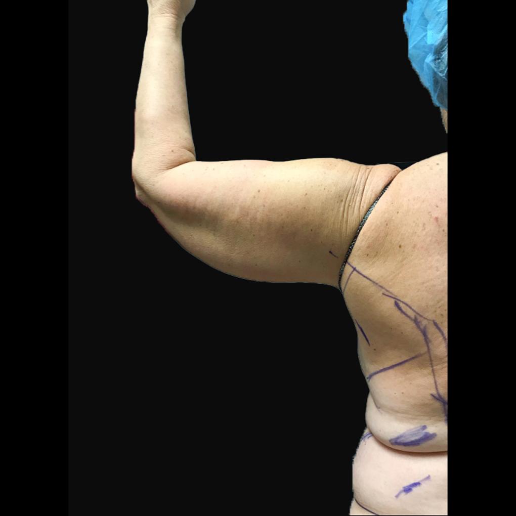 Bodytite Left Arm Before