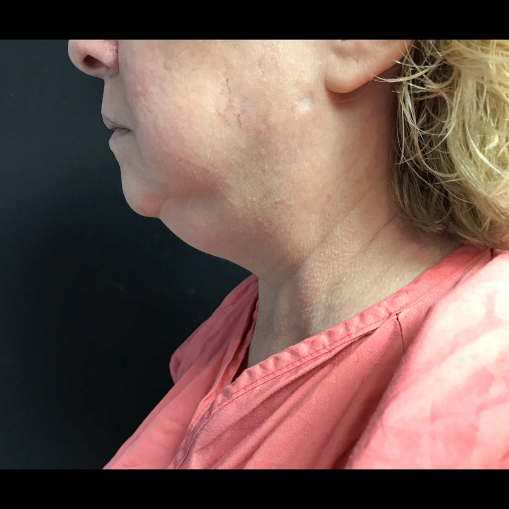 Coolsculpting Chin Side View Before