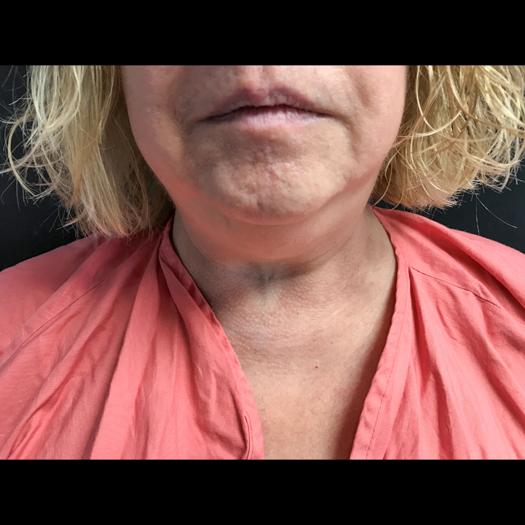 Coolsculpting Chin Front View Before