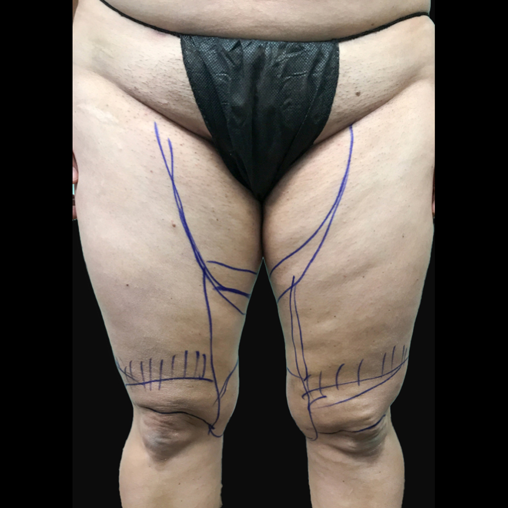Before Smartlipo Inner Thighs and Knee Front View