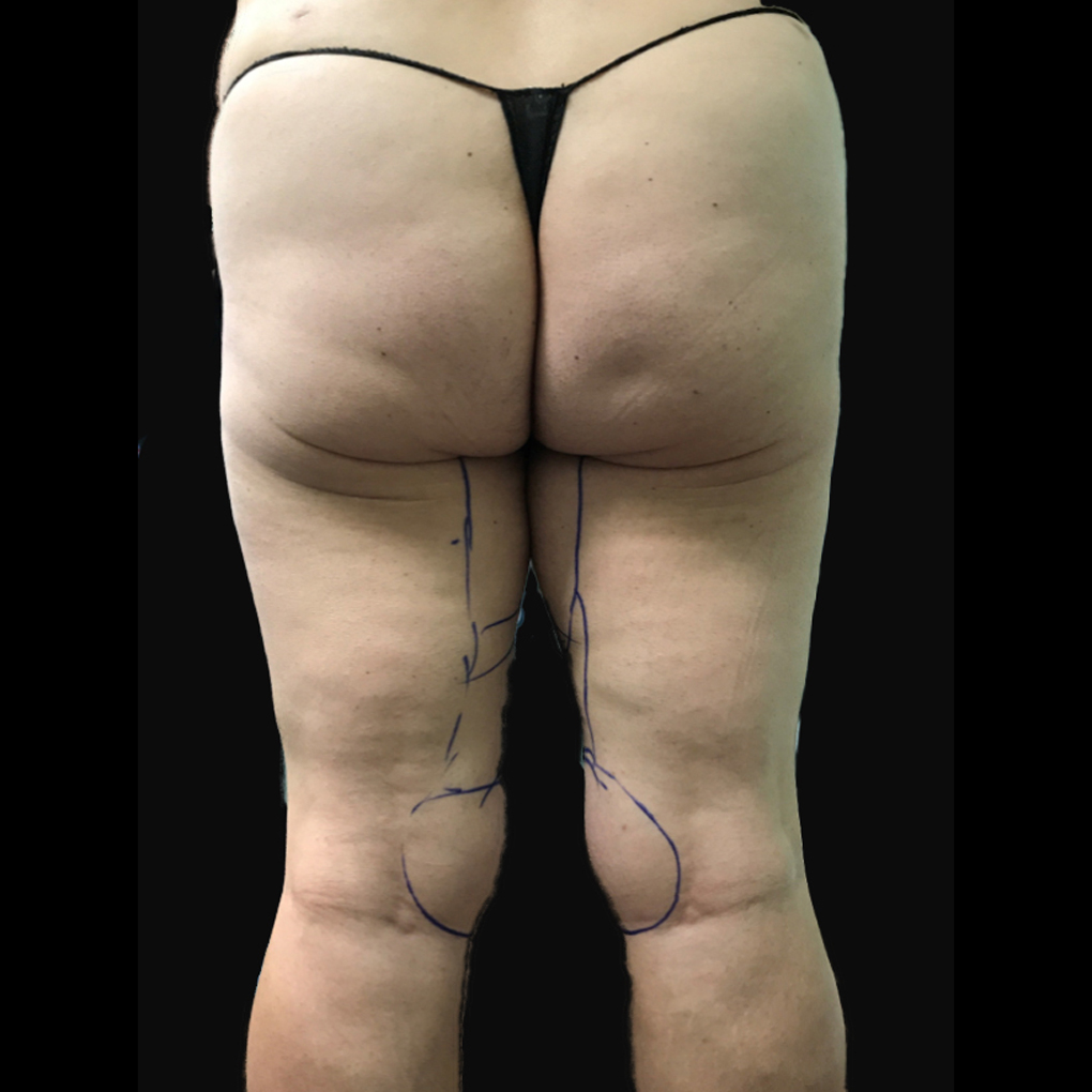 Before Smartlipo Inner Thighs and Knee Back View
