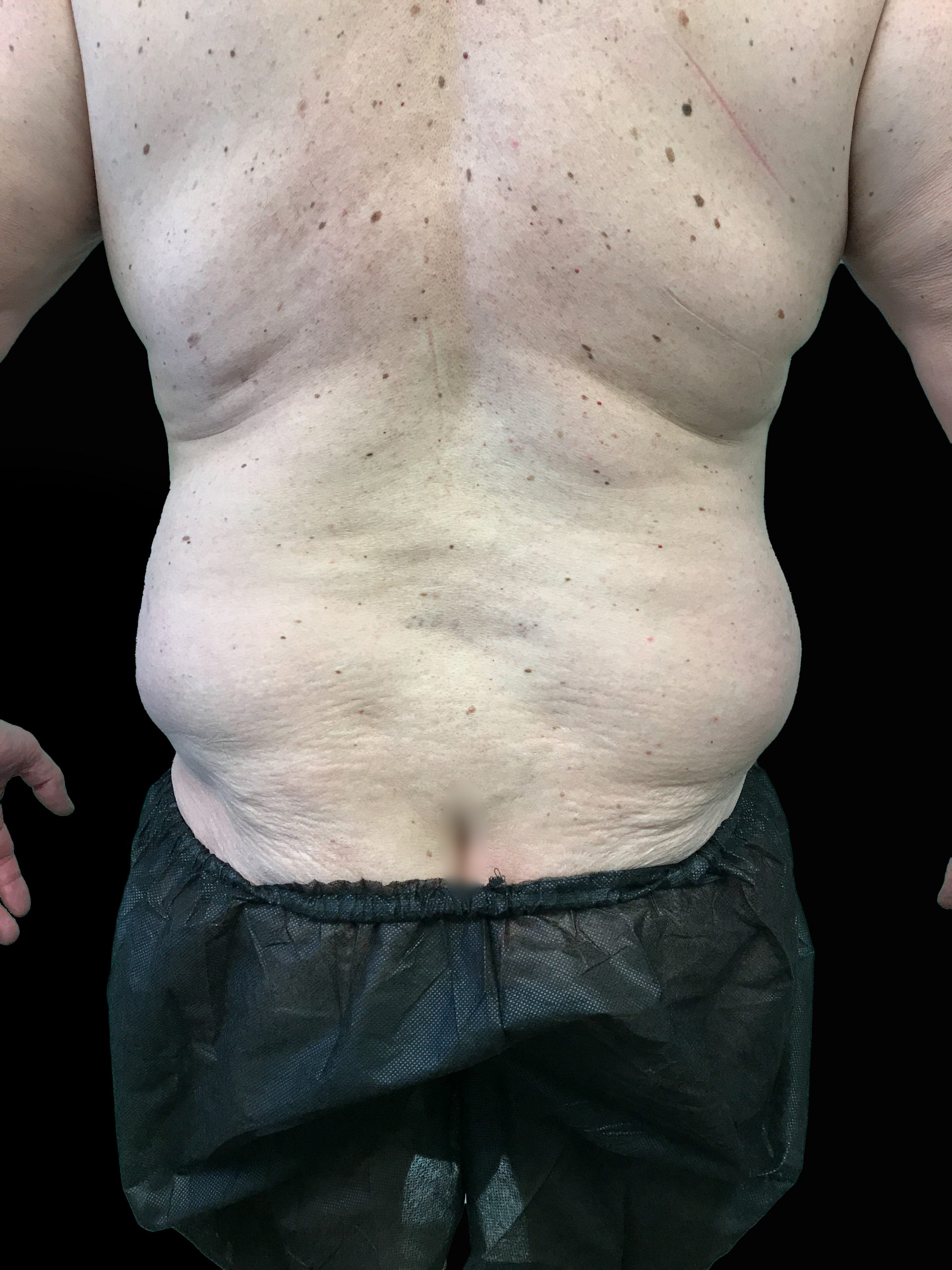Young Medical Spa BodyTite Before Photo Male